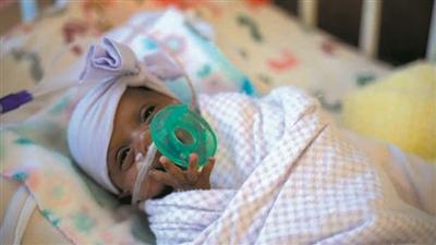 出生时体重仅243.8克 世界最小存活婴儿出院回家
