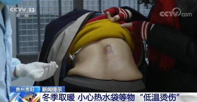 "usdt第三方支付(www.caibao.it):冬季取暖和 小心热水袋等物""低温烫伤"""